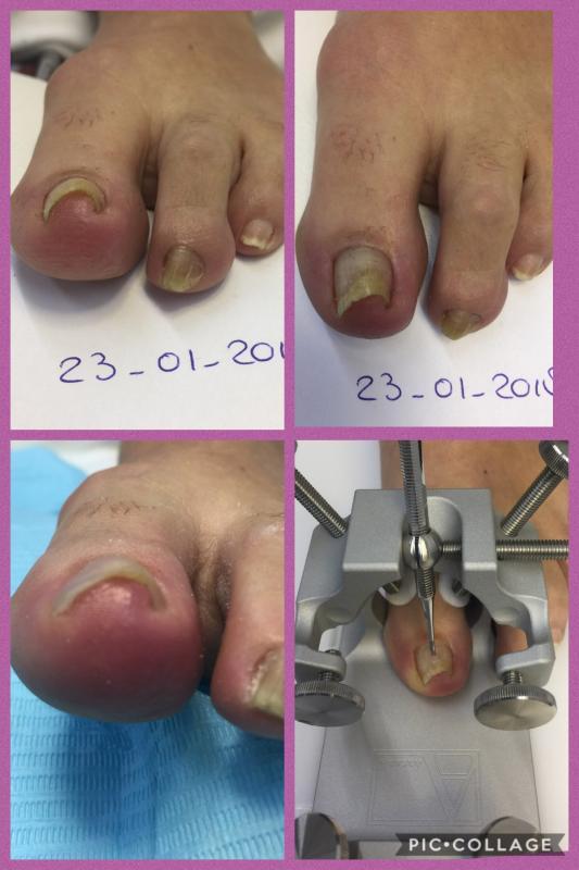 Arkada techniek voor en na de behandeling