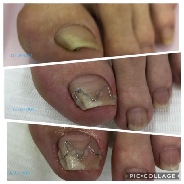 Unibrace beugel ter voorkoming van een ingegroeide nagel.