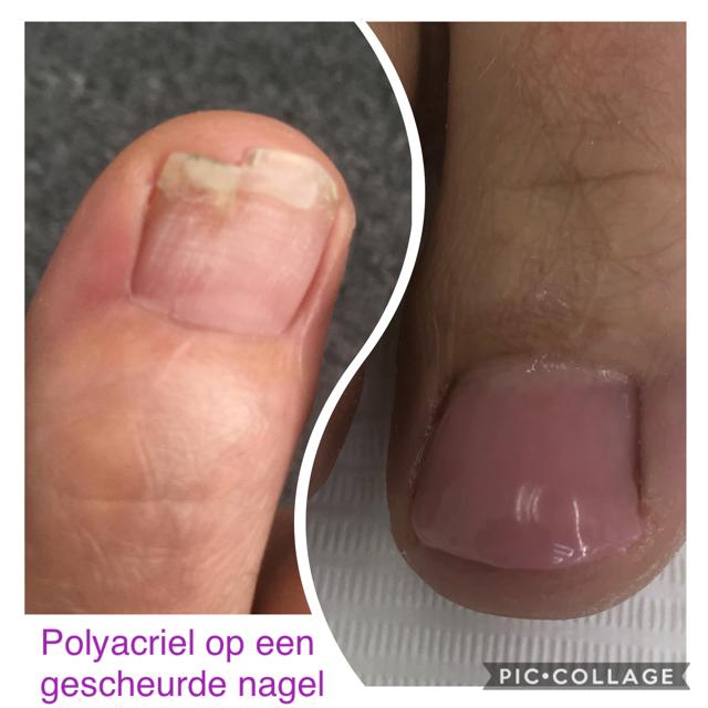 Polyacryl op de nagels