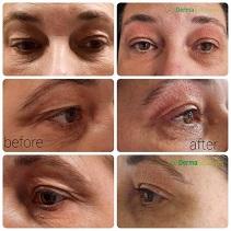 plasma lift ooglid correctie fibroblasting plexr